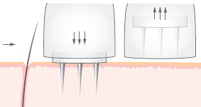Micro-Needling Device